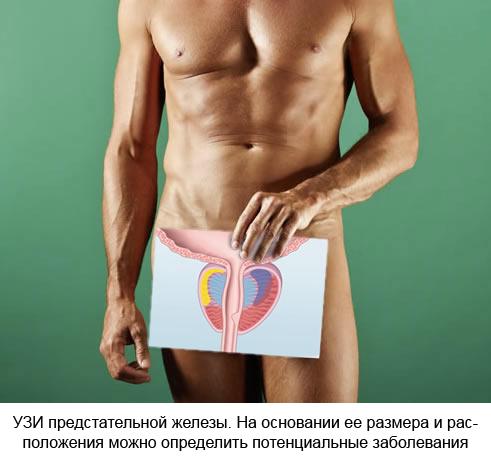 Гиперплазия предстательной железы можно ли делать массаж